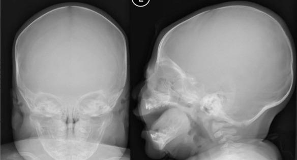 Case Image