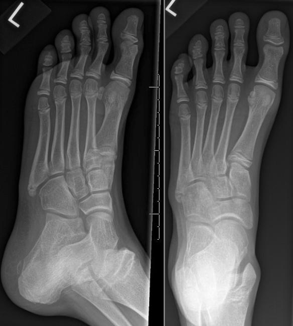 Avulsion Fracture Left Ankle